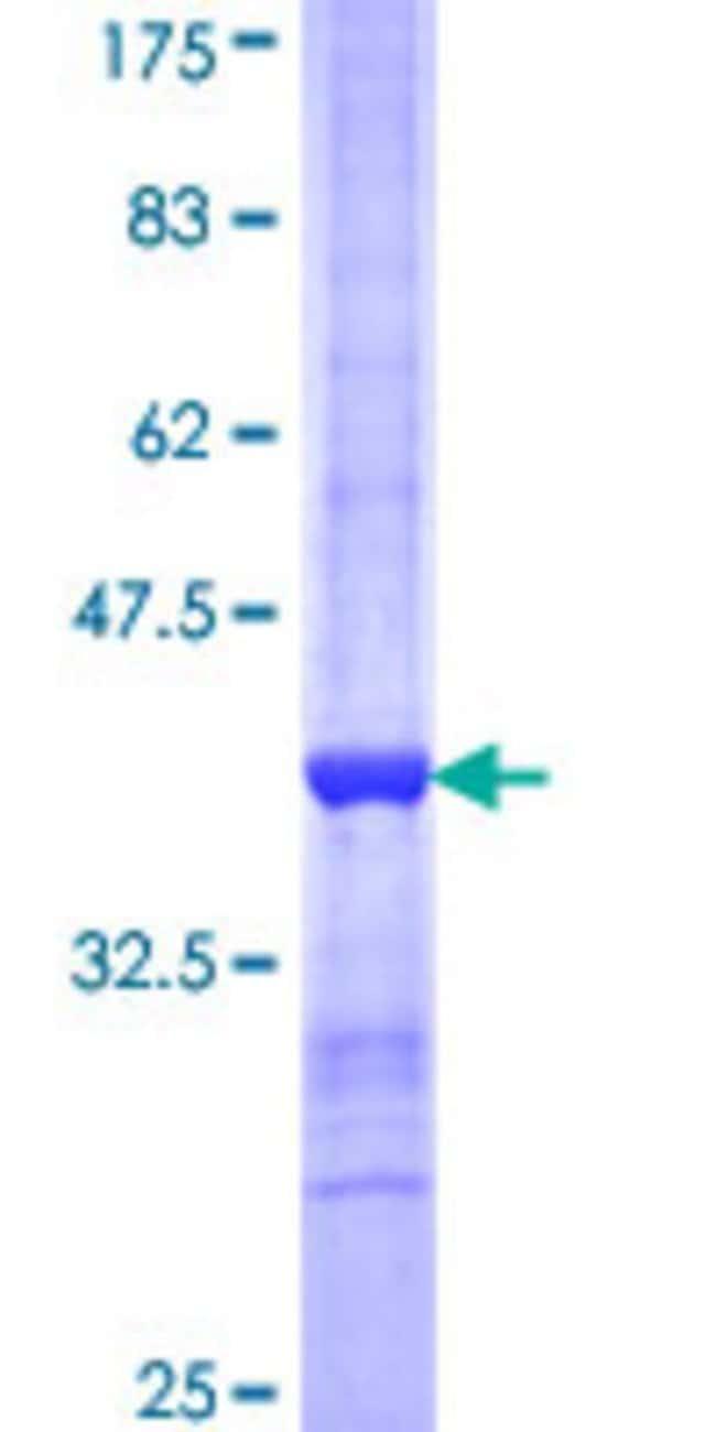 Abnova Human PROS1 Partial ORF (NP_000304, 419 a.a. - 516 a.a.) Recombinant