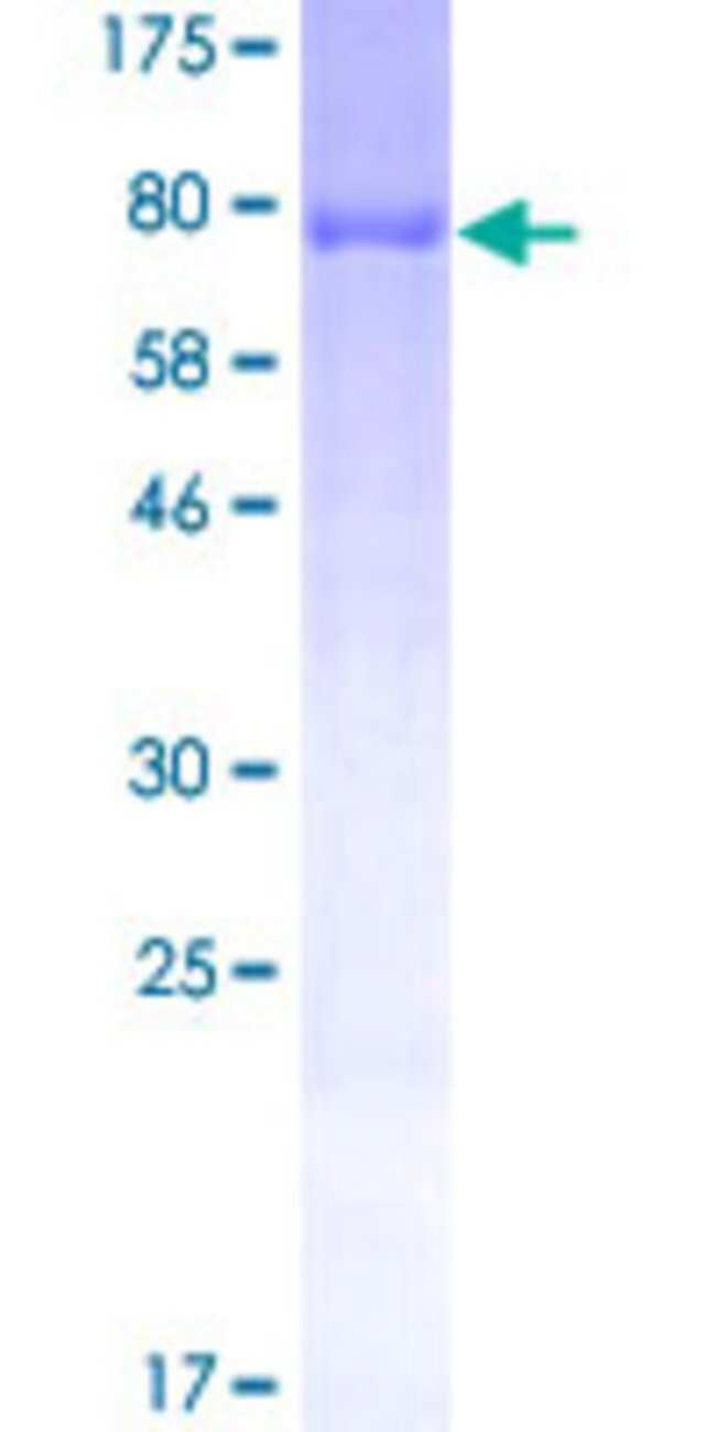 Abnova Human PRPH Full-length ORF (NP_006253.2, 1 a.a. - 470 a.a.) Recombinant