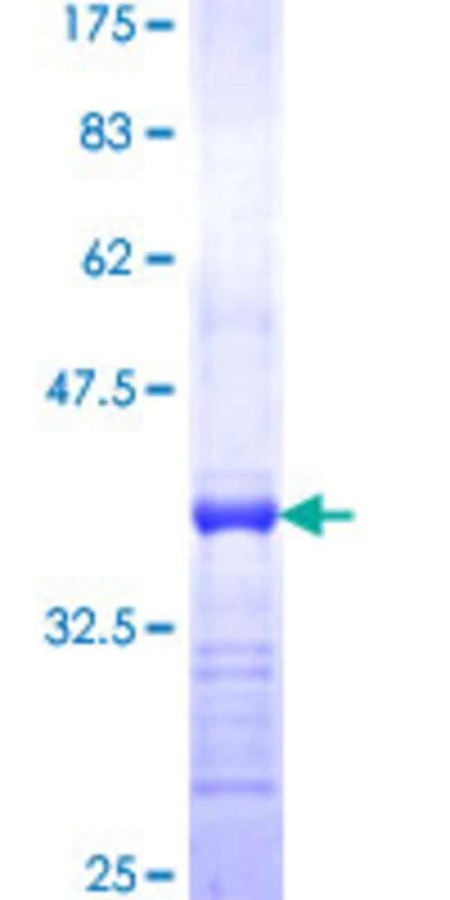 Abnova™ Human PRPH Partial ORF (NP_006253, 374 a.a. - 470 a.a.) Recombinant Protein with GST-tag at N-terminal 25μg Abnova™ Human PRPH Partial ORF (NP_006253, 374 a.a. - 470 a.a.) Recombinant Protein with GST-tag at N-terminal