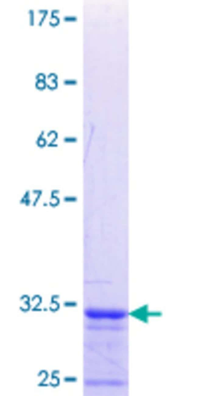 Abnova™Human PRRG1 Partial ORF (NP_000941.1, 22 a.a. - 81 a.a.) Recombinant Protein with GST-tag at N-terminal 10μg Abnova™Human PRRG1 Partial ORF (NP_000941.1, 22 a.a. - 81 a.a.) Recombinant Protein with GST-tag at N-terminal