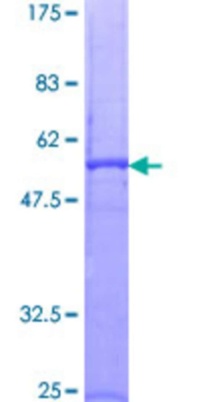 Abnova™ Human PRTN3 Full-length ORF (AAH96184.1, 1 a.a. - 256 a.a.) Recombinant Protein with GST-tag at N-terminal 10μg Abnova™ Human PRTN3 Full-length ORF (AAH96184.1, 1 a.a. - 256 a.a.) Recombinant Protein with GST-tag at N-terminal