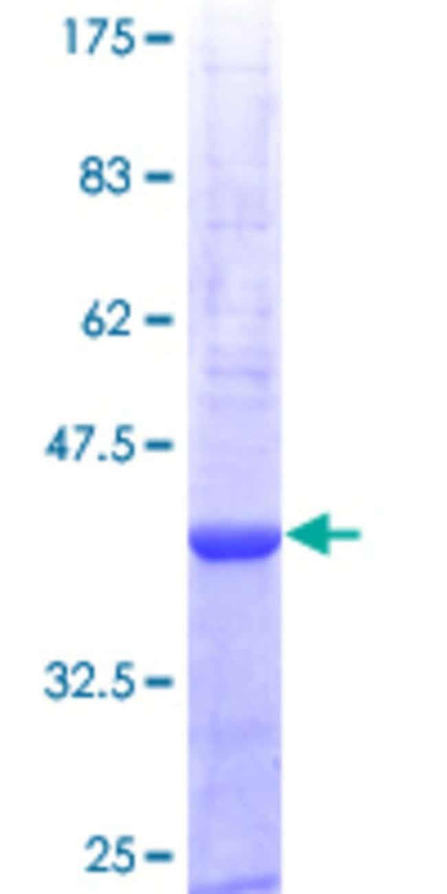 Abnova Human PRTN3 Partial ORF (NP_002768, 139 a.a. - 248 a.a.) Recombinant