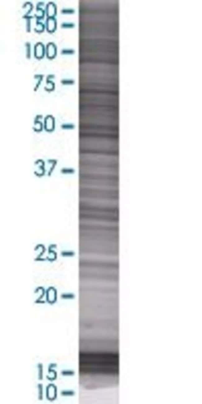 Abnova PSAP 293T Cell Transient Overexpression Lysate (Denatured) 100µL:Life