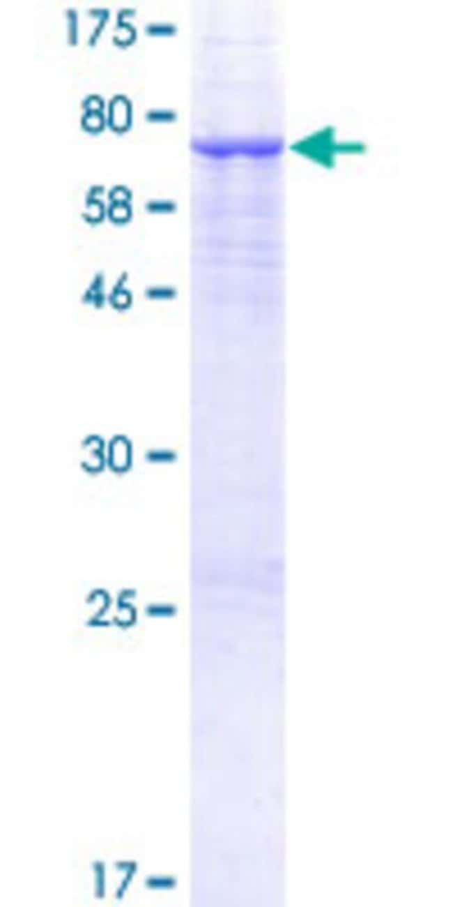 Abnova™Human PSG3 Full-length ORF (AAH05924.2, 1 a.a. - 428 a.a.) Recombinant Protein with GST-tag at N-terminal 25μg Abnova™Human PSG3 Full-length ORF (AAH05924.2, 1 a.a. - 428 a.a.) Recombinant Protein with GST-tag at N-terminal