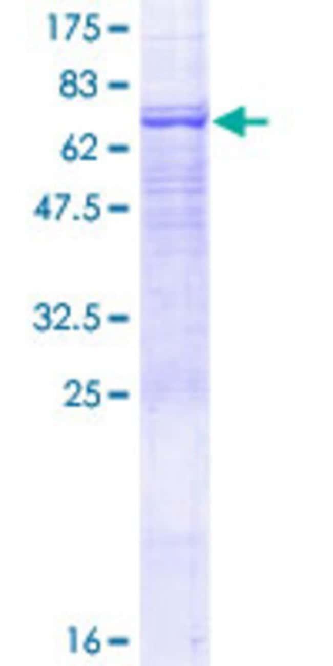 Abnova Human PSG6 Full-length ORF (NP_001027020.1, 1 a.a. - 424 a.a.) Recombinant