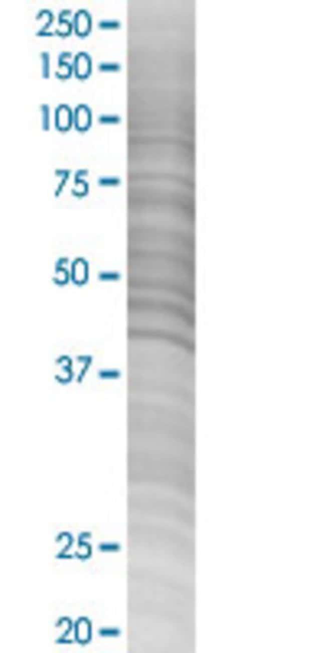 Abnova PSG9 293T Cell Transient Overexpression Lysate (Denatured) (T02)