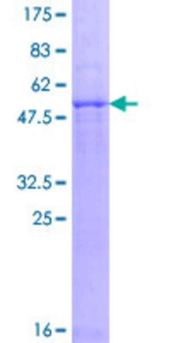 Abnova™Human PSMB8 Full-length ORF (NP_004150.1, 1 a.a. - 272 a.a.) Recombinant Protein with GST-tag at N-terminal 25μg Abnova™Human PSMB8 Full-length ORF (NP_004150.1, 1 a.a. - 272 a.a.) Recombinant Protein with GST-tag at N-terminal
