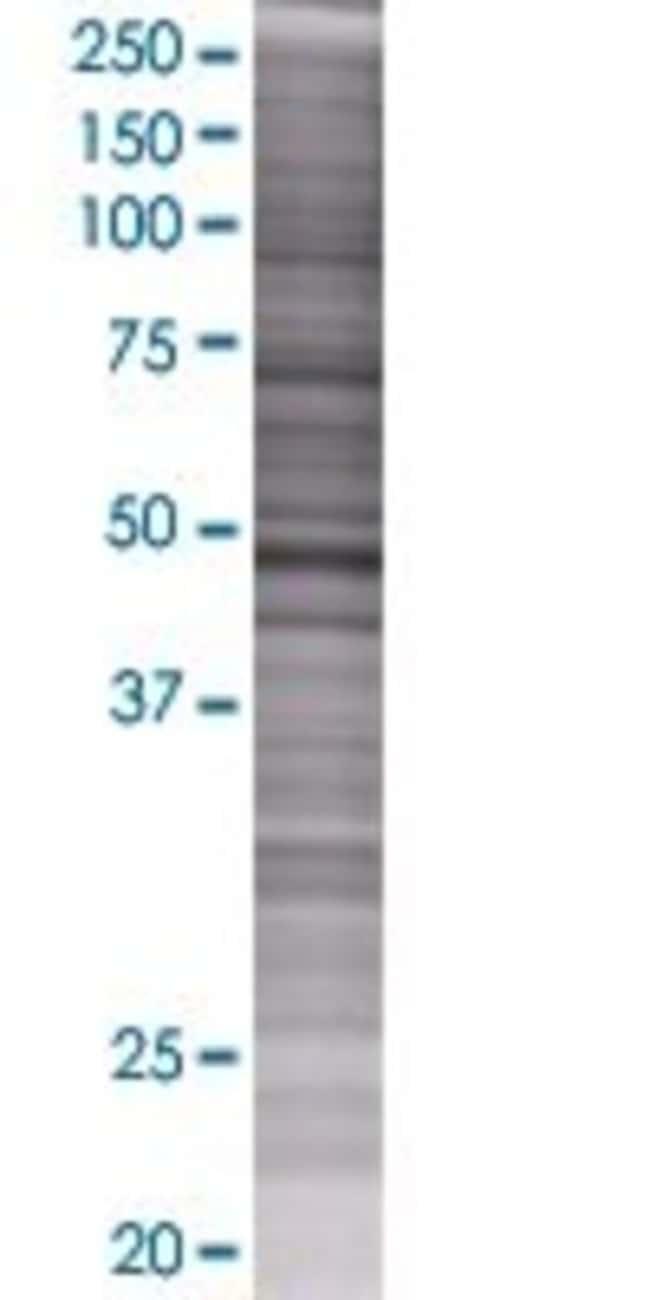 Abnova PSMC4 293T Cell Transient Overexpression Lysate (Denatured) 100µL:Life