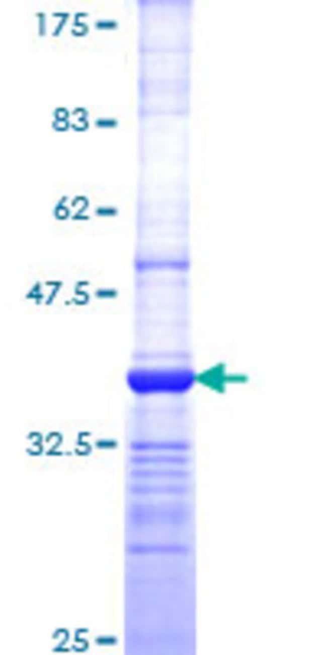 Abnova Human PSMD3 Partial ORF (NP_002800, 435 a.a. - 534 a.a.) Recombinant