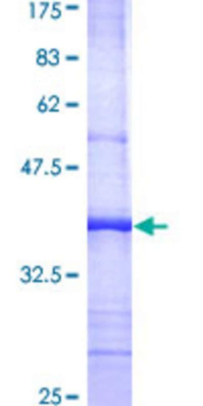 Abnova Human PSMD8 Partial ORF (AAH01164, 1 a.a. - 110 a.a.) Recombinant