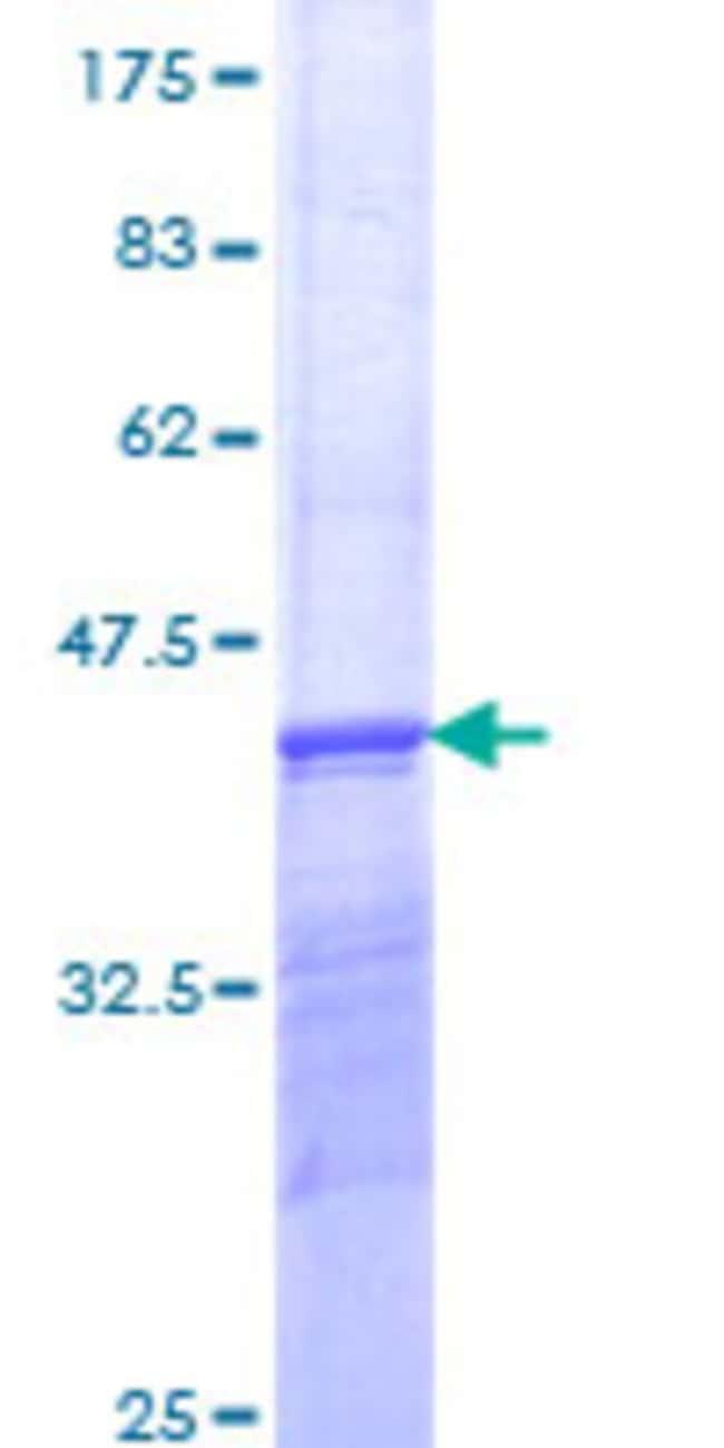 Abnova Human PSMD12 Partial ORF (NP_002807, 347 a.a. - 456 a.a.) Recombinant