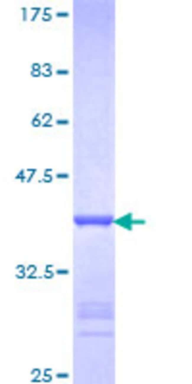 Abnova Human PTBP1 Partial ORF (NP_002810, 45 a.a. - 144 a.a.) Recombinant