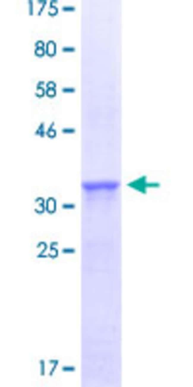Abnova Human PTEN Partial ORF (NP_000305.1, 2 a.a. - 91 a.a.) Recombinant