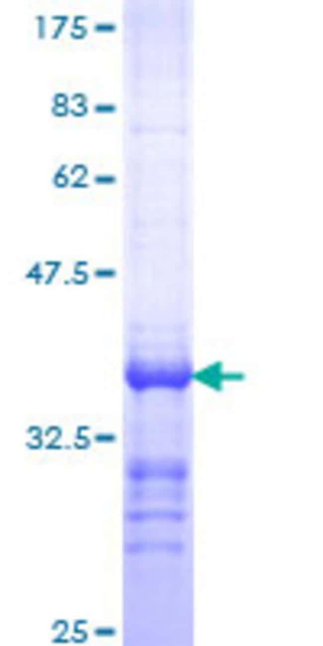 Abnova™Human PTH Partial ORF (NP_000306, 32 a.a. - 115 a.a.) Recombinant Protein with GST-tag at N-terminal 10μg Abnova™Human PTH Partial ORF (NP_000306, 32 a.a. - 115 a.a.) Recombinant Protein with GST-tag at N-terminal