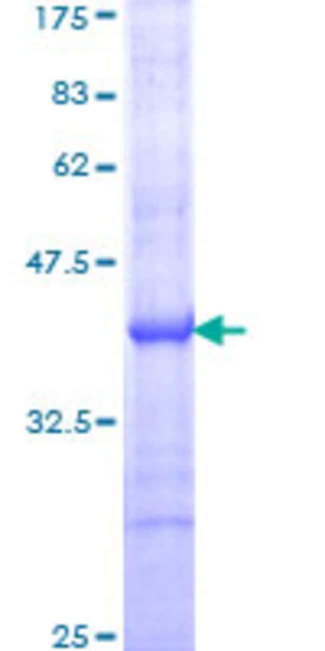 Abnova Human PTGS1 Partial ORF (AAH29840, 26 a.a. - 125 a.a.) Recombinant