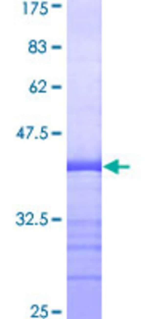 Abnova™Human PTK7 Partial ORF (NP_002812, 36 a.a. - 145 a.a.) Recombinant Protein with GST-tag at N-terminal 10μg Abnova™Human PTK7 Partial ORF (NP_002812, 36 a.a. - 145 a.a.) Recombinant Protein with GST-tag at N-terminal