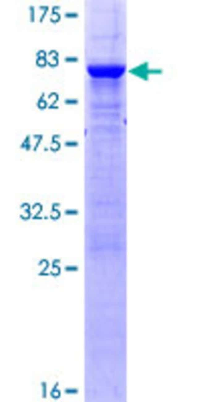 Abnova™Human PTPN2 Full-length ORF (NP_536347.1, 1 a.a. - 387 a.a.) Recombinant Protein with GST-tag at N-terminal 25μg Abnova™Human PTPN2 Full-length ORF (NP_536347.1, 1 a.a. - 387 a.a.) Recombinant Protein with GST-tag at N-terminal