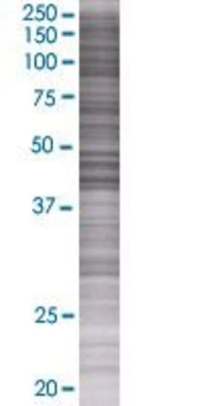 Abnova PTPN2 293T Cell Transient Overexpression Lysate (Denatured) (T01)