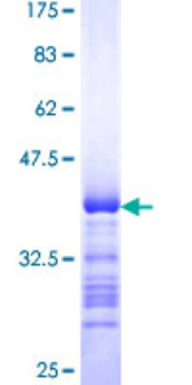 Abnova™Human PTPN4 Partial ORF (NP_002821, 361 a.a. - 460 a.a.) Recombinant Protein with GST-tag at N-terminal 25μg Abnova™Human PTPN4 Partial ORF (NP_002821, 361 a.a. - 460 a.a.) Recombinant Protein with GST-tag at N-terminal