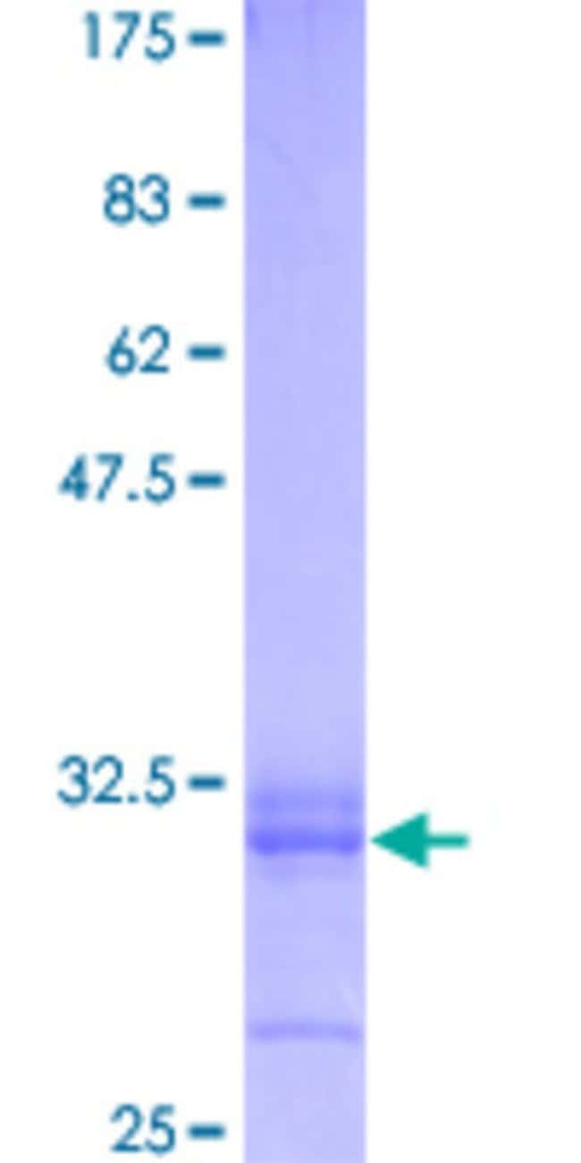 Abnova Human PTPN11 Full-length ORF (AAH25181, 1 a.a. - 50 a.a.) Recombinant