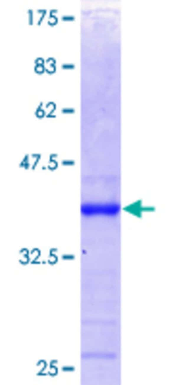 Abnova™Human PTPN12 Partial ORF (NP_002826.2, 682 a.a. - 779 a.a.) Recombinant Protein with GST-tag at N-terminal 25μg Abnova™Human PTPN12 Partial ORF (NP_002826.2, 682 a.a. - 779 a.a.) Recombinant Protein with GST-tag at N-terminal