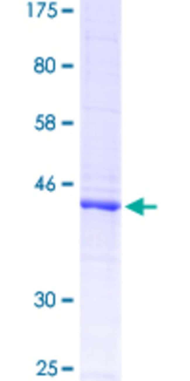 Abnova™Human PTPRC Partial ORF (NP_002829.2, 390 a.a. - 570 a.a.) Recombinant Protein with GST-tag at N-terminal 10μg Abnova™Human PTPRC Partial ORF (NP_002829.2, 390 a.a. - 570 a.a.) Recombinant Protein with GST-tag at N-terminal