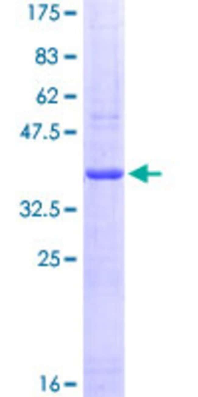 Abnova Human PTPRF Partial ORF (NP_002831, 1788 a.a. - 1897 a.a.) Recombinant