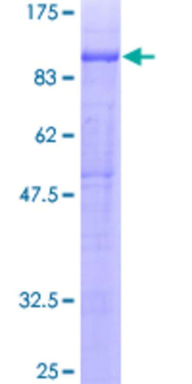 Abnova Human PTPRO Full-length ORF (AAH35960, 1 a.a. - 597 a.a.) Recombinant