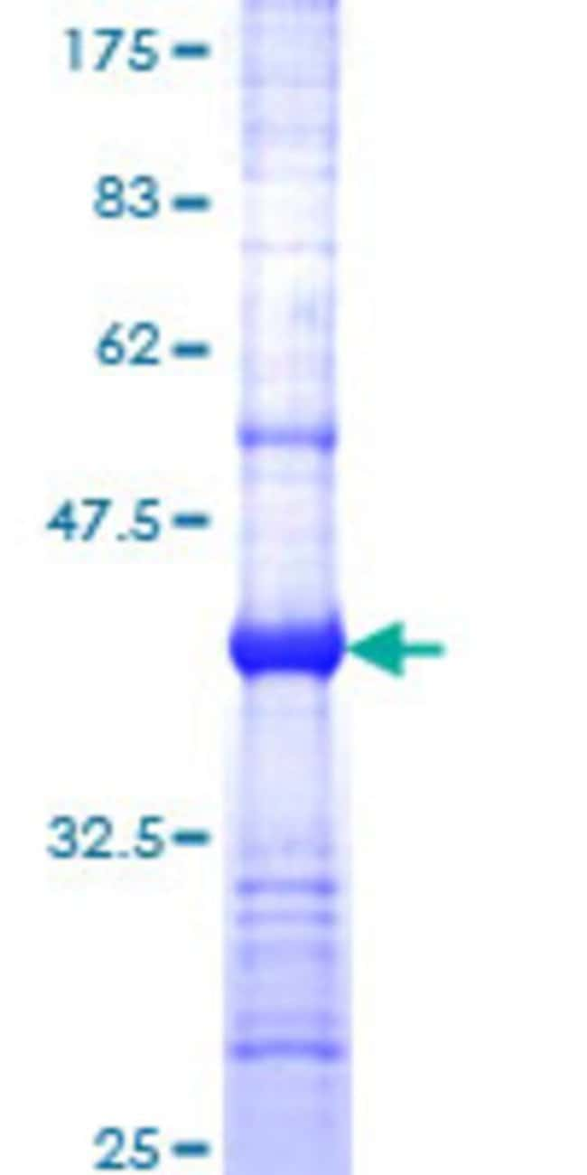 Abnova™Human PVRL1 Partial ORF (NP_002846, 33 a.a. - 142 a.a.) Recombinant Protein with GST-tag at N-terminal 25μg Abnova™Human PVRL1 Partial ORF (NP_002846, 33 a.a. - 142 a.a.) Recombinant Protein with GST-tag at N-terminal