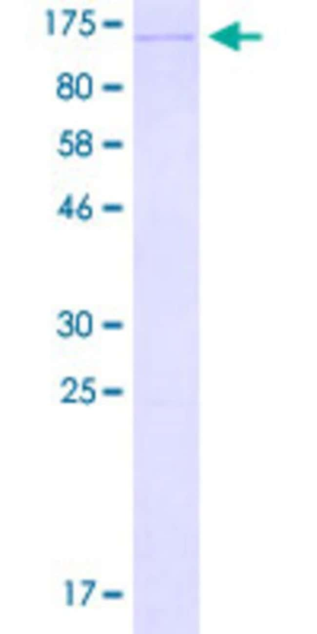 AbnovaHuman ALDH18A1 Full-length ORF (ADR83253.1, 1 a.a. - 795 a.a.) Recombinant