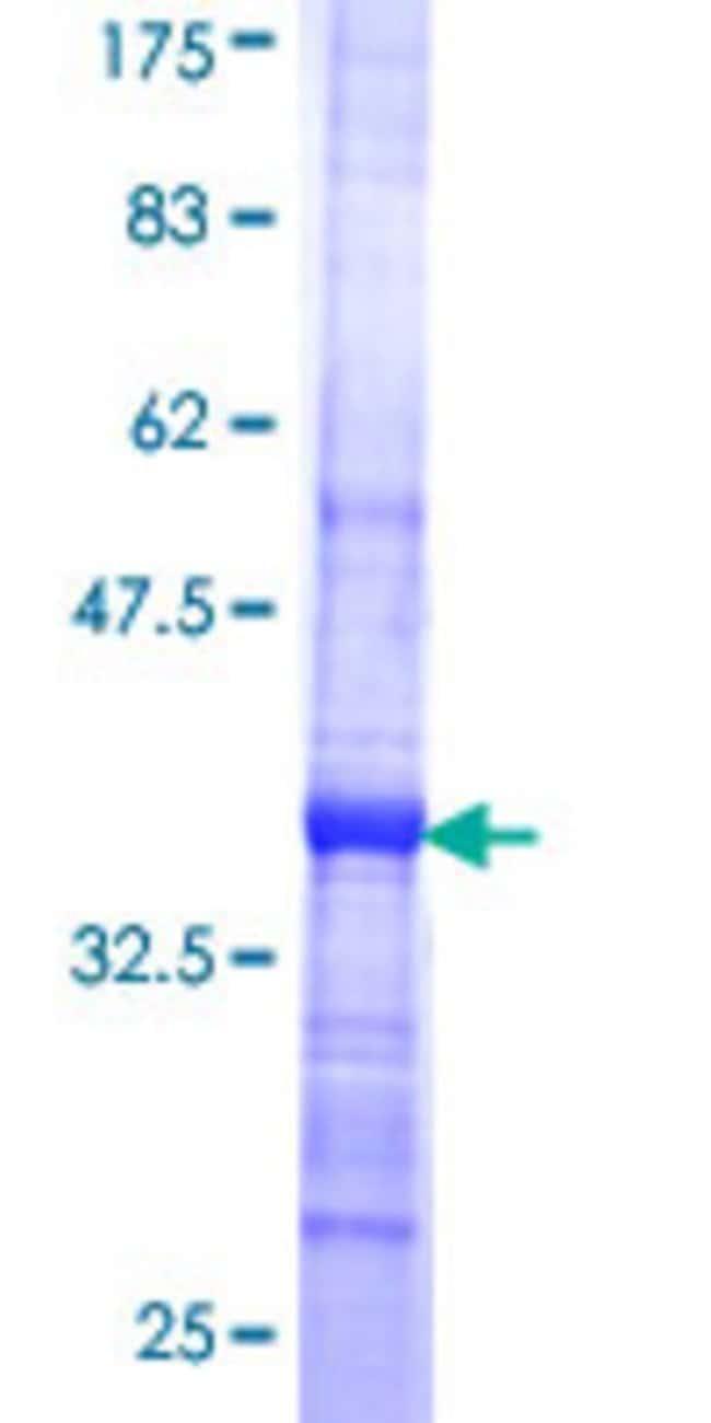 Abnova™Human QARS Partial ORF (NP_005042, 677 a.a. - 775 a.a.) Recombinant Protein with GST-tag at N-terminal 10μg Abnova™Human QARS Partial ORF (NP_005042, 677 a.a. - 775 a.a.) Recombinant Protein with GST-tag at N-terminal