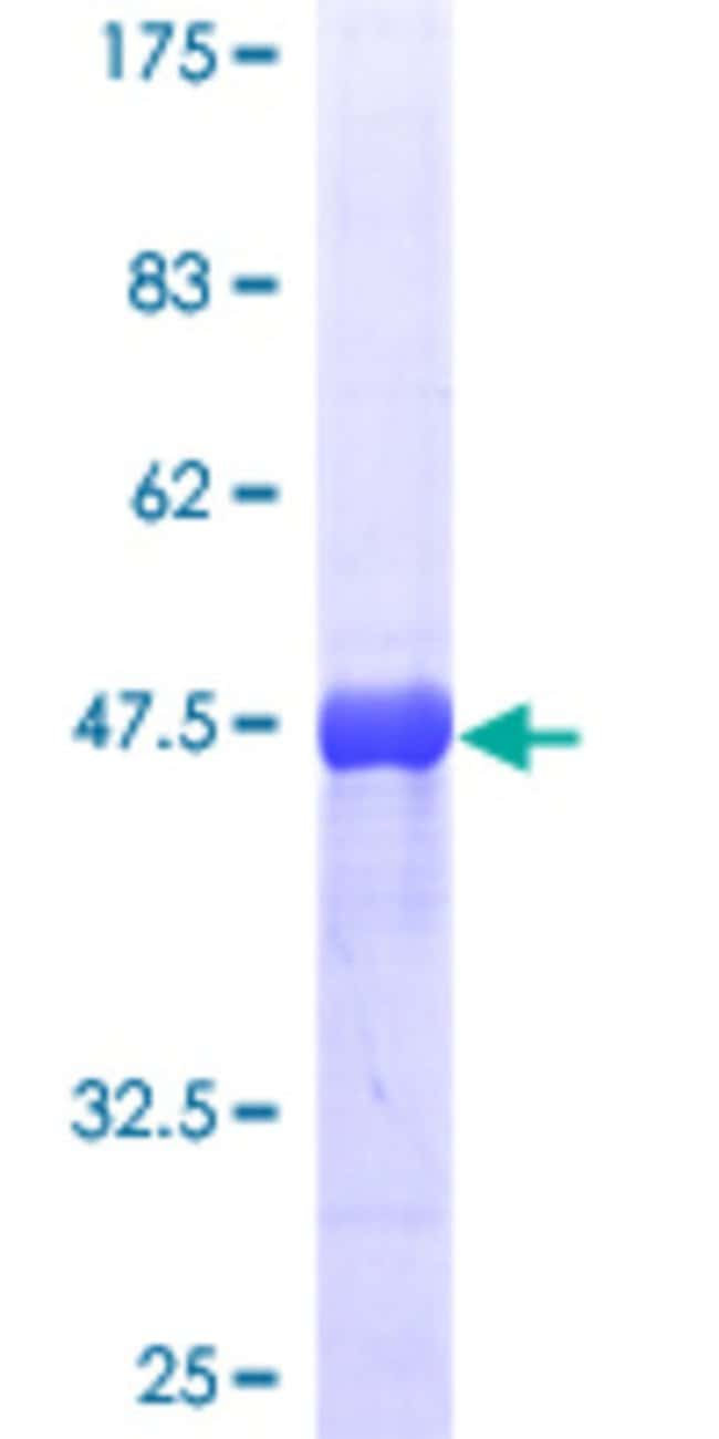 Abnova™Human RAB5A Full-length ORF (AAH18288, 1 a.a. - 215 a.a.) Recombinant Protein with GST-tag at N-terminal 25μg Abnova™Human RAB5A Full-length ORF (AAH18288, 1 a.a. - 215 a.a.) Recombinant Protein with GST-tag at N-terminal