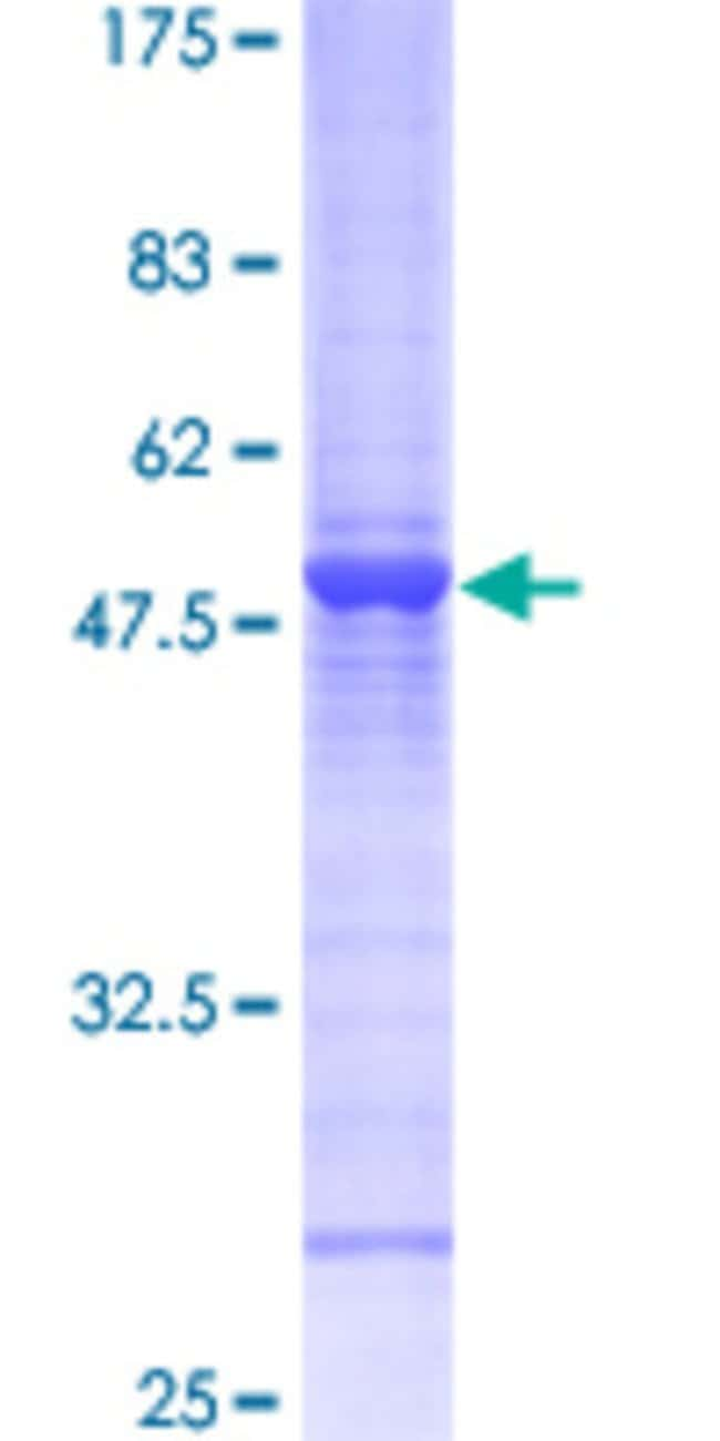 Abnova™ Human RAB6A Full-length ORF (NP_002860, 1 a.a. - 208 a.a.) Recombinant Protein with GST-tag at N-terminal 25μg Abnova™ Human RAB6A Full-length ORF (NP_002860, 1 a.a. - 208 a.a.) Recombinant Protein with GST-tag at N-terminal