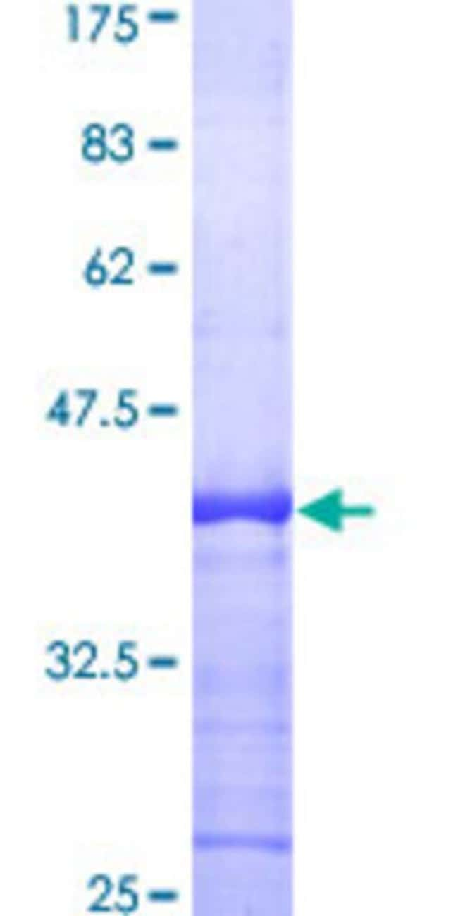 Abnova™Human RAB6A Partial ORF (AAH03617, 109 a.a. - 208 a.a.) Recombinant Protein with GST-tag at N-terminal 10μg Abnova™Human RAB6A Partial ORF (AAH03617, 109 a.a. - 208 a.a.) Recombinant Protein with GST-tag at N-terminal