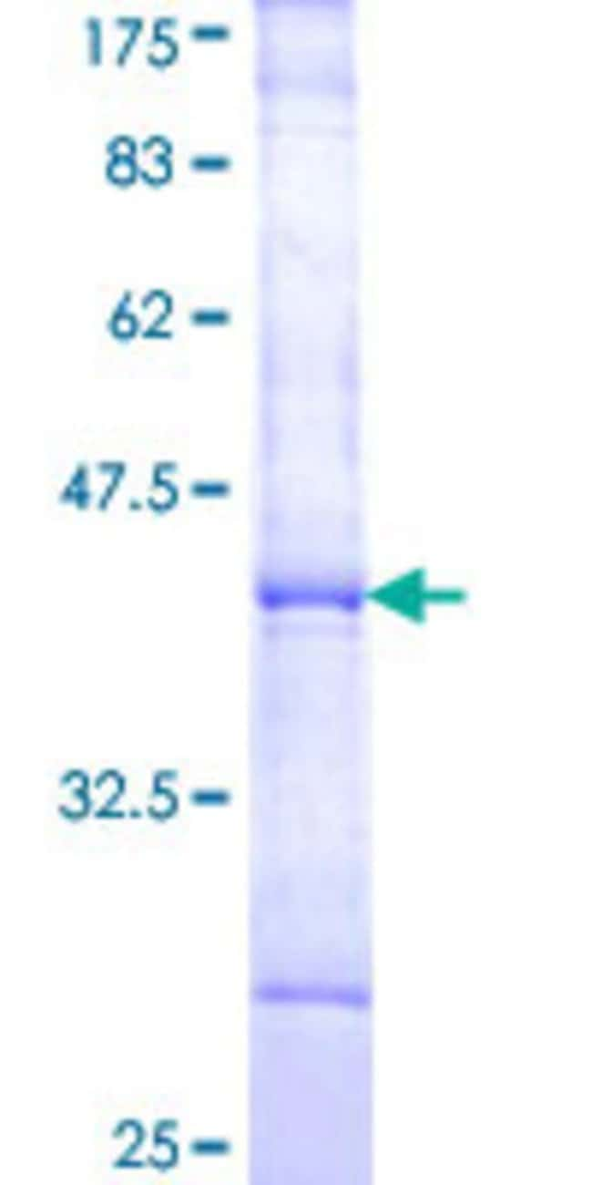 Abnova™Human RAD9A Partial ORF (AAH14848, 61 a.a. - 170 a.a.) Recombinant Protein with GST-tag at N-terminal 10μg Abnova™Human RAD9A Partial ORF (AAH14848, 61 a.a. - 170 a.a.) Recombinant Protein with GST-tag at N-terminal