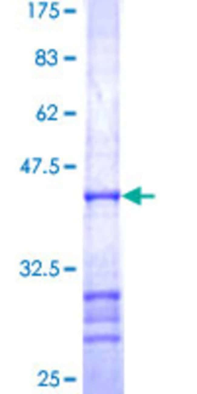 Abnova™Human RAF1 Partial ORF (AAH18119, 1 a.a. - 130 a.a.) Recombinant Protein with GST-tag at N-terminal 25μg Abnova™Human RAF1 Partial ORF (AAH18119, 1 a.a. - 130 a.a.) Recombinant Protein with GST-tag at N-terminal