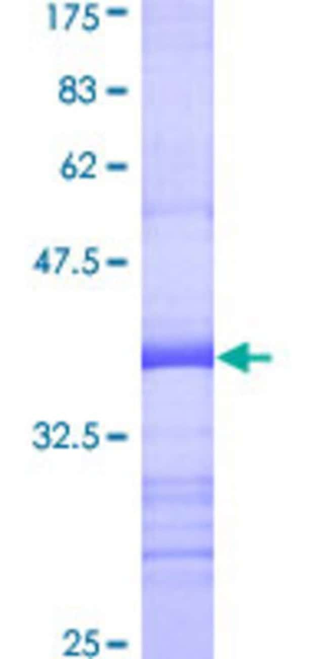Abnova™Human RALA Partial ORF (AAH39858, 1 a.a. - 95 a.a.) Recombinant Protein with GST-tag at N-terminal 25μg Abnova™Human RALA Partial ORF (AAH39858, 1 a.a. - 95 a.a.) Recombinant Protein with GST-tag at N-terminal