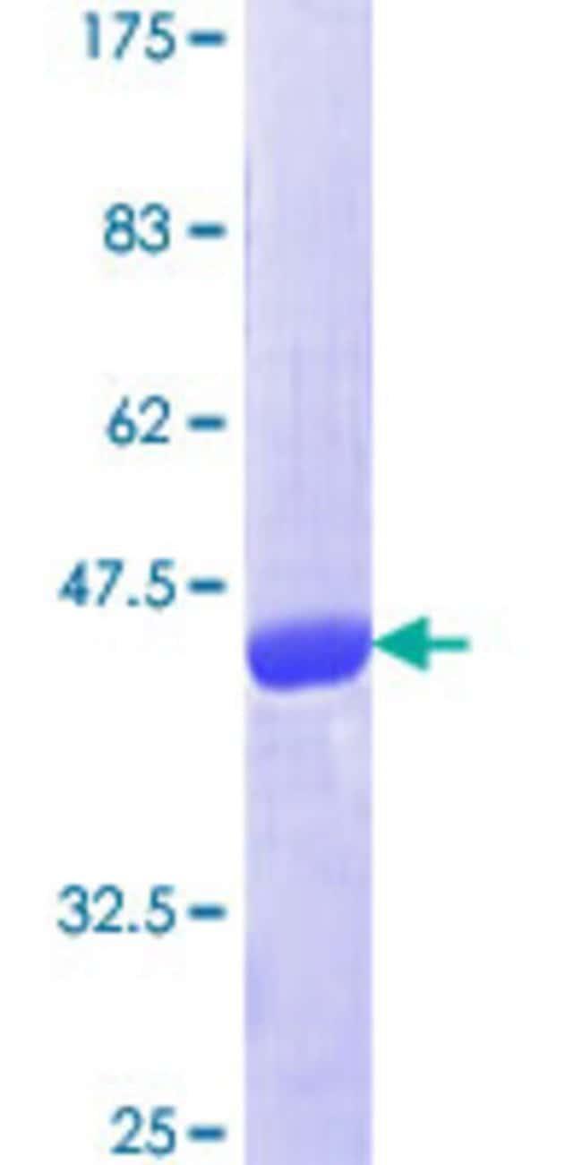 Abnova Human RAP1B Full-length ORF (NP_001010942.1, 1 a.a. - 184 a.a.)
