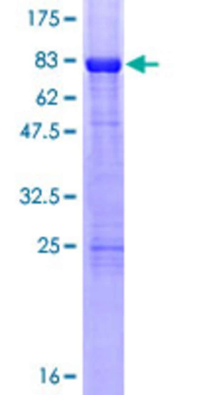 Abnova™Human RARB Full-length ORF (NP_000956.2, 1 a.a. - 448 a.a.) Recombinant Protein with GST-tag at N-terminal 25μg Abnova™Human RARB Full-length ORF (NP_000956.2, 1 a.a. - 448 a.a.) Recombinant Protein with GST-tag at N-terminal