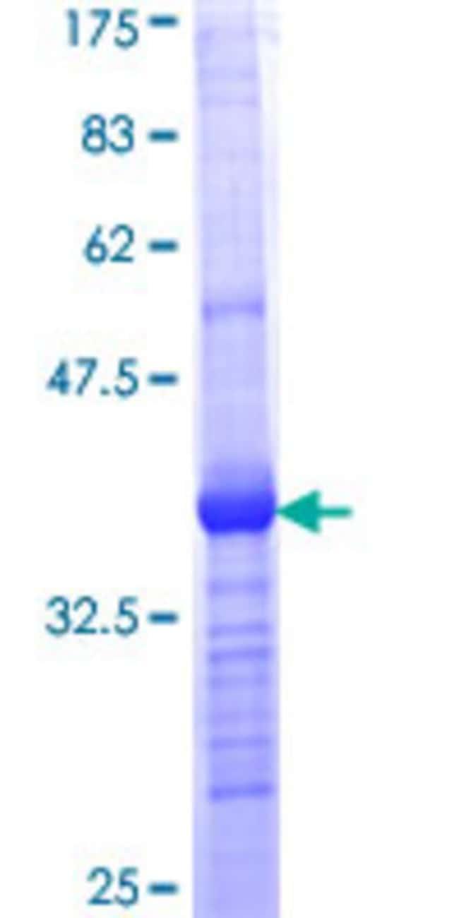 Abnova Human RARRES1 Partial ORF (NP_996846, 205 a.a. - 294 a.a.) Recombinant