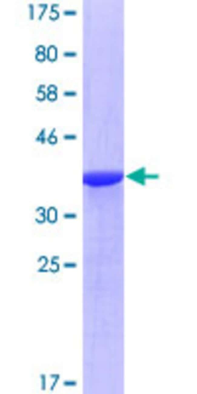 Abnova Human RASA1 Partial ORF (NP_002881, 948 a.a. - 1047 a.a.) Recombinant