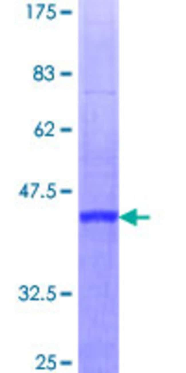 Abnova™Human RBBP6 Full-length ORF (NP_116015.2, 1 a.a. - 118 a.a.) Recombinant Protein with GST-tag at N-terminal 25μg Abnova™Human RBBP6 Full-length ORF (NP_116015.2, 1 a.a. - 118 a.a.) Recombinant Protein with GST-tag at N-terminal