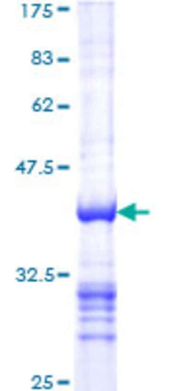 Abnova™Human RBL2 Partial ORF (NP_005602.3, 416 a.a. - 515 a.a.) Recombinant Protein with GST-tag at N-terminal 10μg Abnova™Human RBL2 Partial ORF (NP_005602.3, 416 a.a. - 515 a.a.) Recombinant Protein with GST-tag at N-terminal