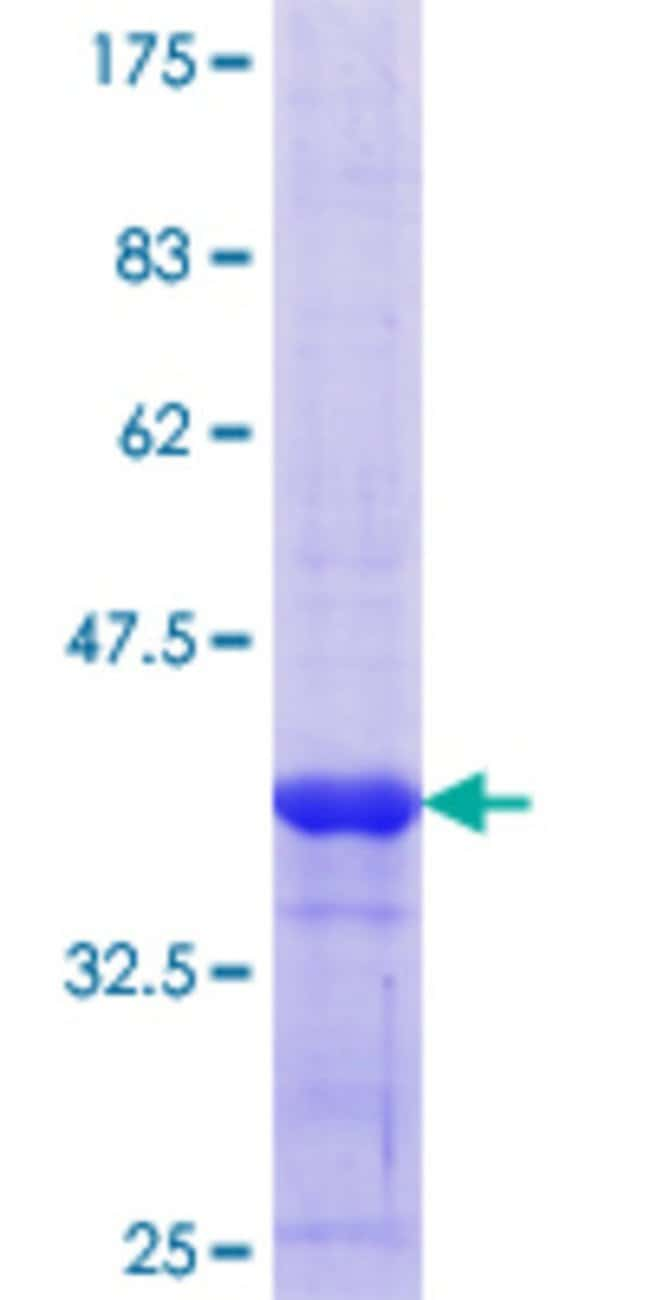Abnova™Human RBMY1A1 Partial ORF (NP_001007527.1, 257 a.a. - 356 a.a.) Recombinant Protein with GST-tag at N-terminal 10μg Abnova™Human RBMY1A1 Partial ORF (NP_001007527.1, 257 a.a. - 356 a.a.) Recombinant Protein with GST-tag at N-terminal