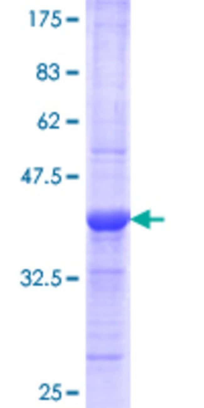 Abnova™Human REG1A Partial ORF (AAH05350.1, 23 a.a. - 122 a.a.) Recombinant Protein with GST-tag at N-terminal 10μg Abnova™Human REG1A Partial ORF (AAH05350.1, 23 a.a. - 122 a.a.) Recombinant Protein with GST-tag at N-terminal