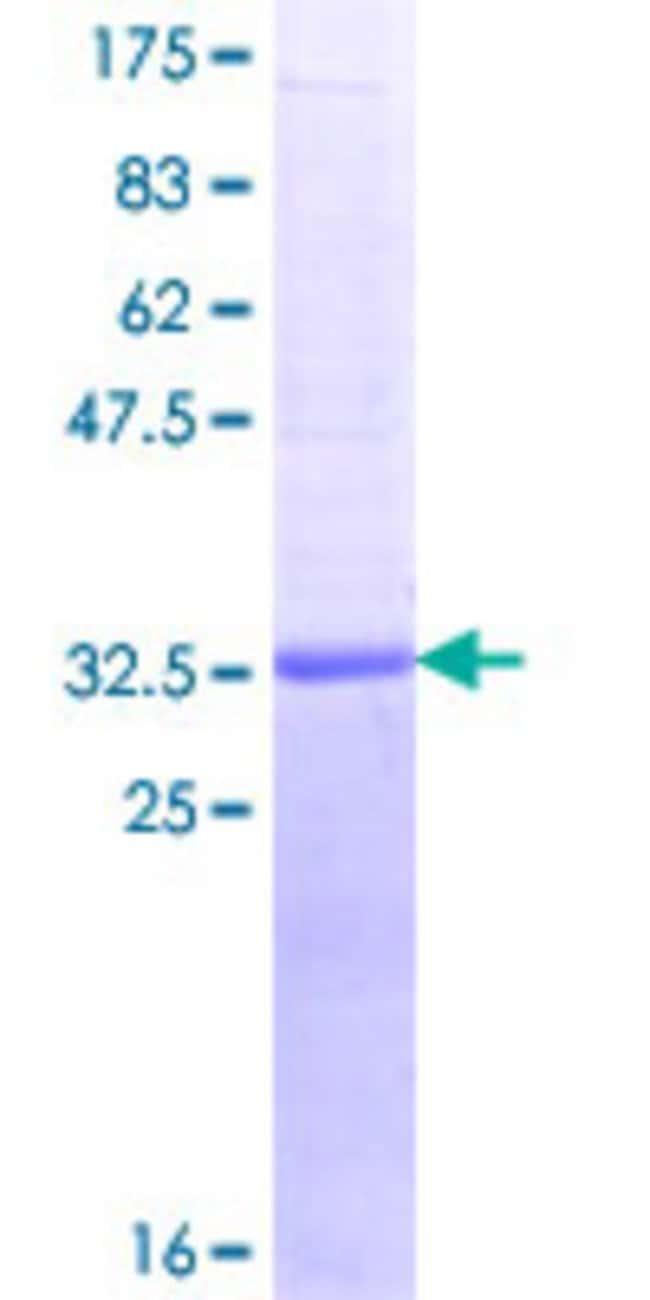 Abnova Human REG1B Partial ORF (NP_006498.1, 67 a.a. - 166 a.a.) Recombinant