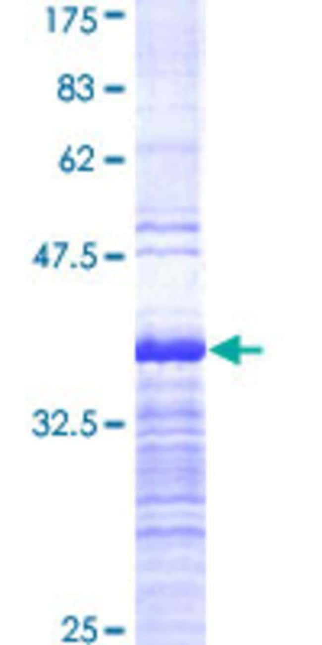 Abnova™Human DPF2 Partial ORF (AAH14889, 56 a.a. - 155 a.a.) Recombinant Protein with GST-tag at N-terminal 10μg Abnova™Human DPF2 Partial ORF (AAH14889, 56 a.a. - 155 a.a.) Recombinant Protein with GST-tag at N-terminal