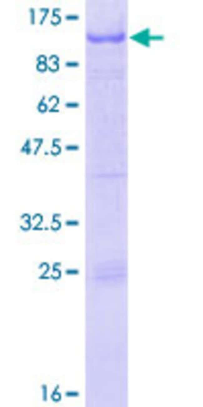 Abnova™Human RFX2 Full-length ORF (AAH28579.1, 1 a.a. - 723 a.a.) Recombinant Protein with GST-tag at N-terminal 25μg Abnova™Human RFX2 Full-length ORF (AAH28579.1, 1 a.a. - 723 a.a.) Recombinant Protein with GST-tag at N-terminal