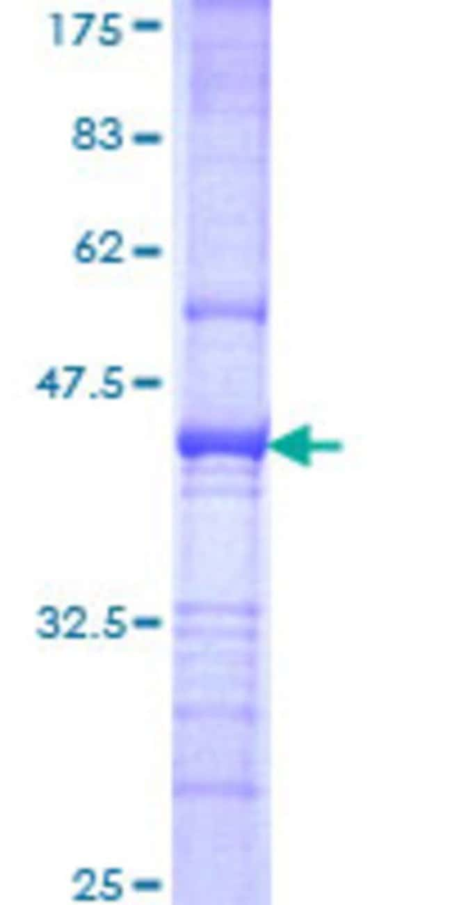 Abnova™ Human RFX2 Partial ORF (NP_000626, 323 a.a. - 429 a.a.) Recombinant Protein with GST-tag at N-terminal 10μg Abnova™ Human RFX2 Partial ORF (NP_000626, 323 a.a. - 429 a.a.) Recombinant Protein with GST-tag at N-terminal
