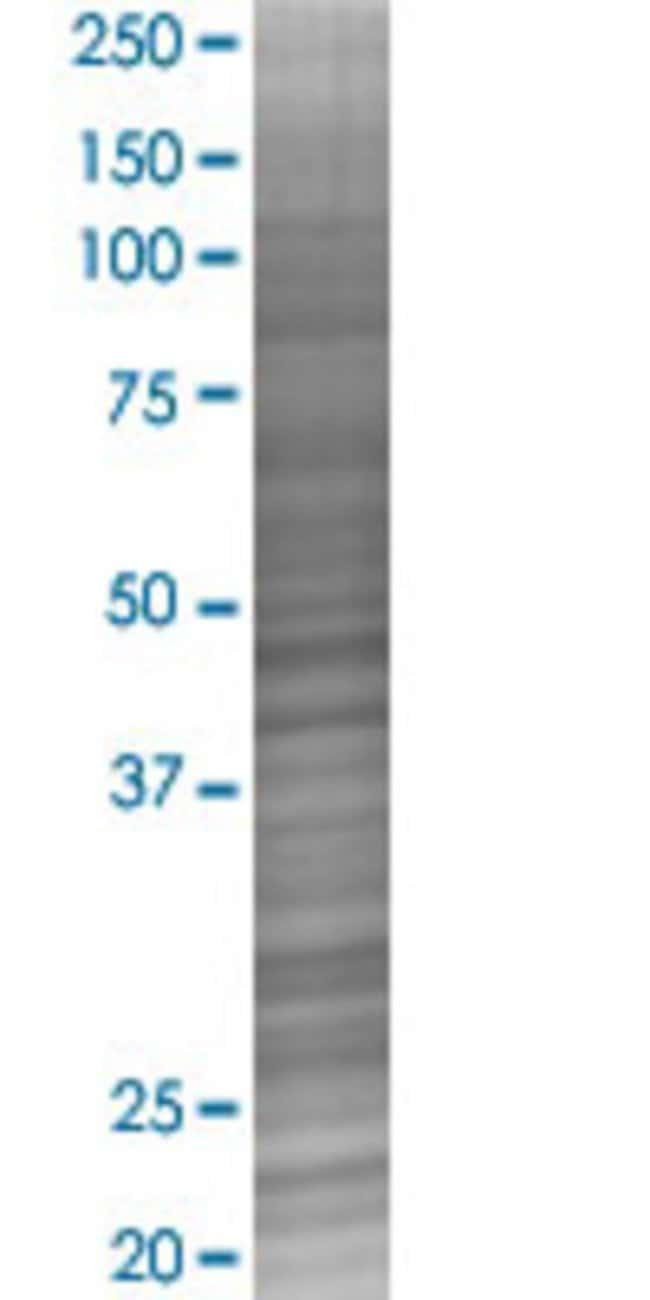 Abnova RIT2 293T Cell Transient Overexpression Lysate (Denatured) 100µL:Life